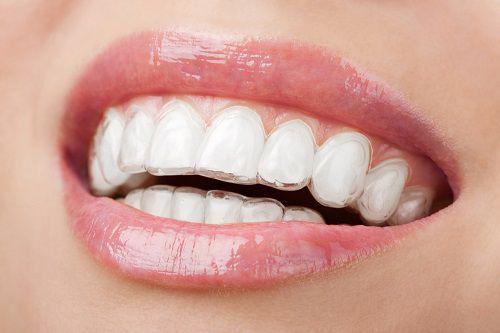 các loại răng thẩm mỹ hiện nay